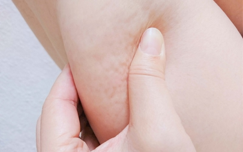 太ももやむくみが気になる女性のための脚ケア・脚やせ対策
